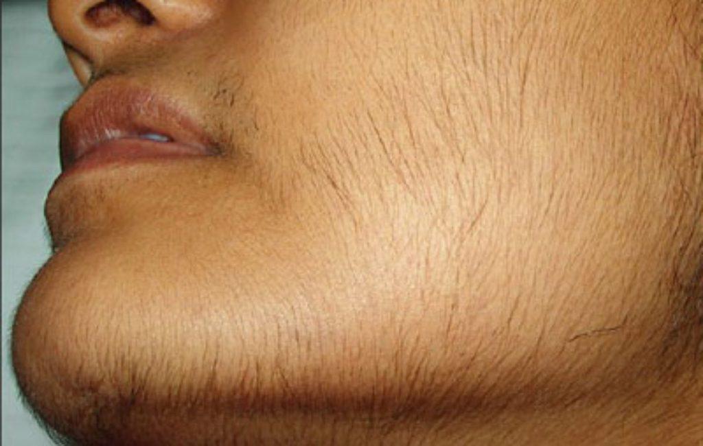 علت رشد بی رویه موهای زائد و روش درمان چیست