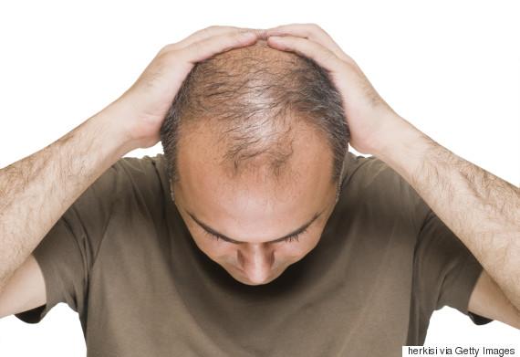 بررسی ریزش موی مردانه و علت آن
