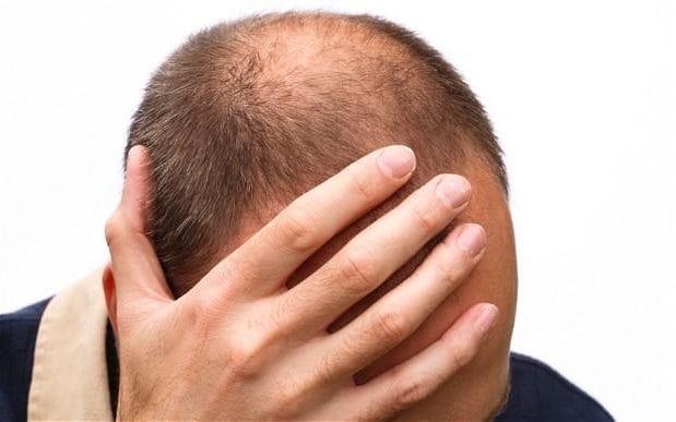 داروی های مناسب برای درمان ریزش مو