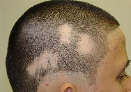 علت و درمان ریزش مو سکه ای یا بیماری آلوپسی آره آتا چیست؟