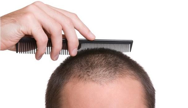 7 تصور اشتباه در مورد رشد مو و ریزش مو