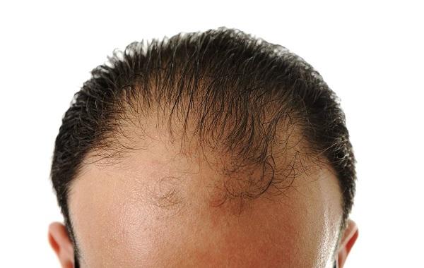 علت ریزش مو در مردان چیست و ریزش موی ارثی
