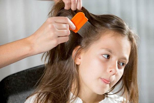 درمان ریزش موی کودکان