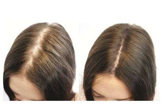 علت ریزش مو در زنان و نحوه تشخیص و درمان