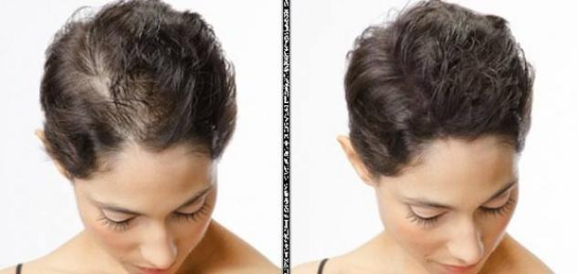 درمان ریزش مو در زنان با داروهای گیاهی