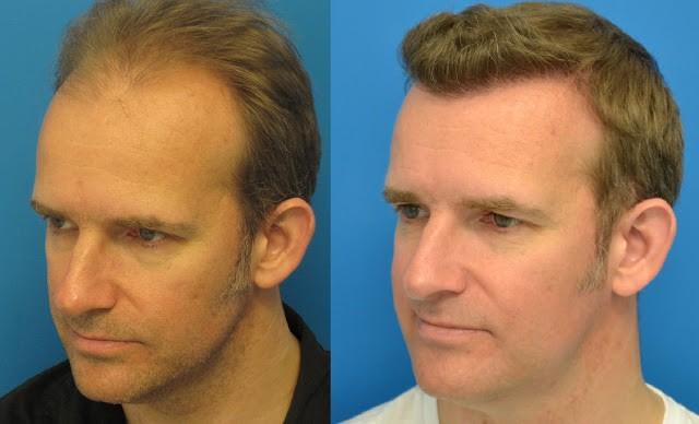 روش HRT برای ترمیم مو