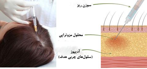 مزوتراپی برای درمان ریزش مو