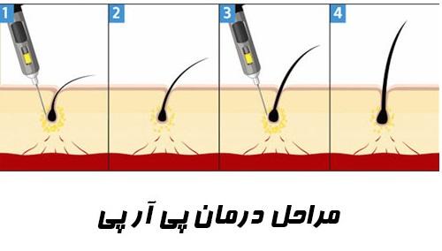 prp برای جلوگیری از ریزش مو