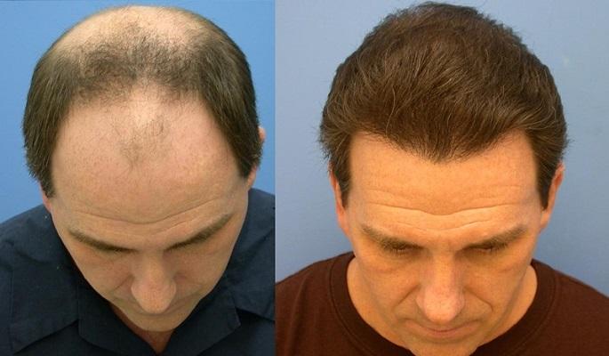 طبیعی ترین روش برای ترمیم مو روش HRT