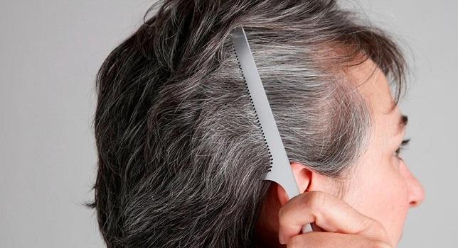 سفید شدن مو در جوانی را جدی بگیرید