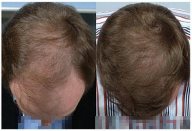 ریزش مو آندروژنیک روش های تقویتی و درمان آن