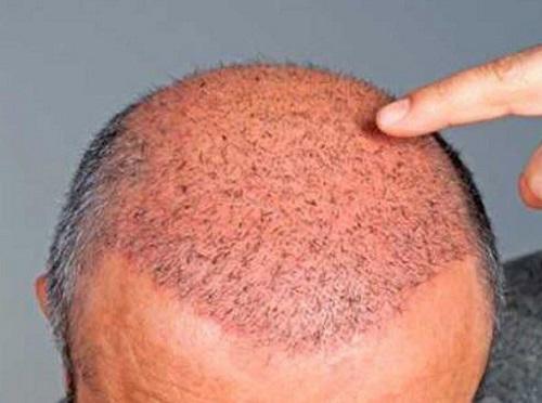 نکات مهم در مورد کاشت و ترمیم مو