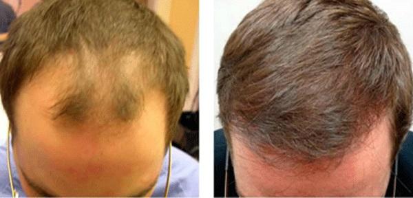 پیوند مو و استفاده از روش SUT برای پیوند