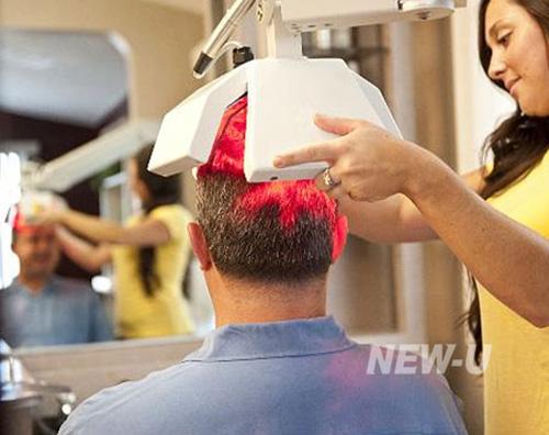 تقویت مو با لیزرتراپی