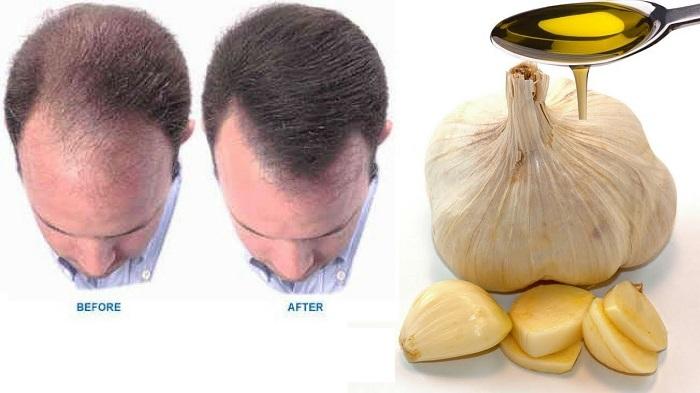 رشد مو و جلوگیری از ریزش آن با شامپو سیر