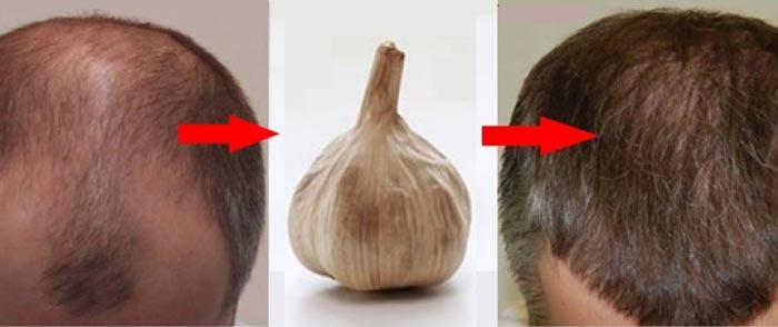 تاثیر سیر بر روی مو