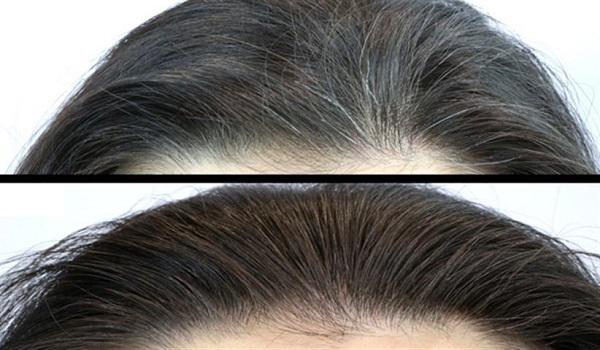 ماسک برای رفع سفیدی مو