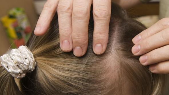 تقویت موی خانوم ها