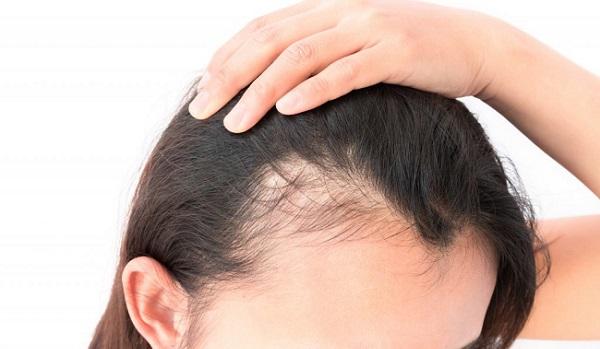 راه حل و درمان نازک شدن موها در خانوم ها
