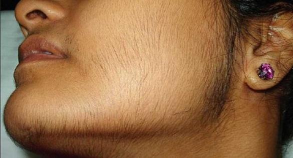 علت رشد موهای زائد و شیوه درمان آن