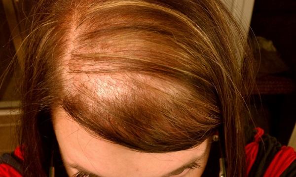 علت ریزش موی خانوم ها
