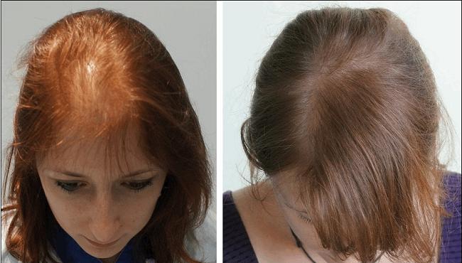 عوارض کاشت موی طبیعی برای بیماران قلبی