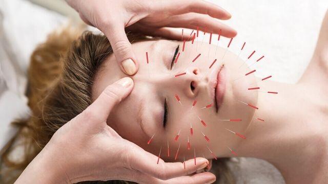 طب سوزنی راهکاری برای داشتن پوستی جوان و شفاف   کندش