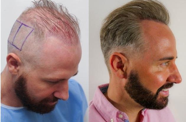 کاشت مو و آشنایی با انواع روش ترمیم و کاشت مو