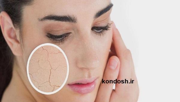 راهکارهایی برای از بین بردن خشکی پوست