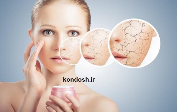 از بین بردن خشکی پوست