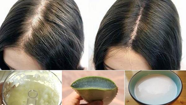 درمان طاسی و کم پشتی موی سر