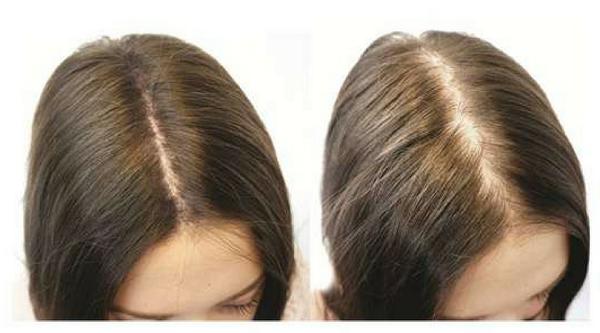 بهترین روغن مو که حتی طاسی سر را درمان می کند