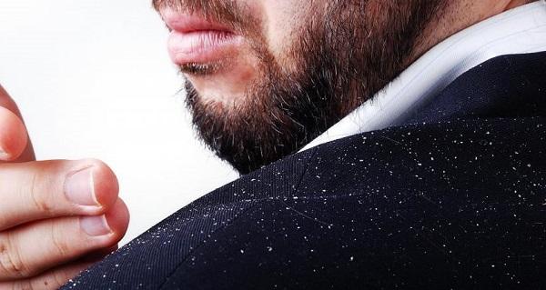 علت شوره سر و خارش پوست و راه درمان آن