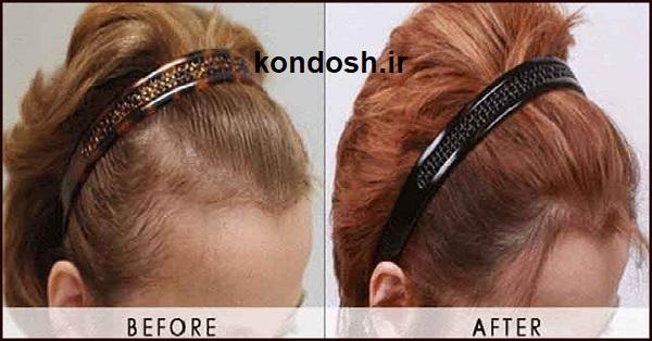 روغن جوجوبا برای موی سر