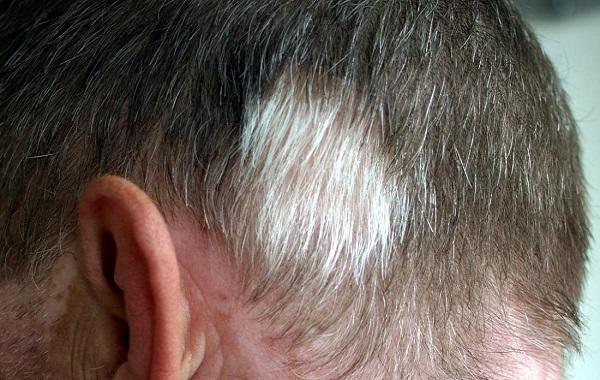 راه چاره سفید شدن مو