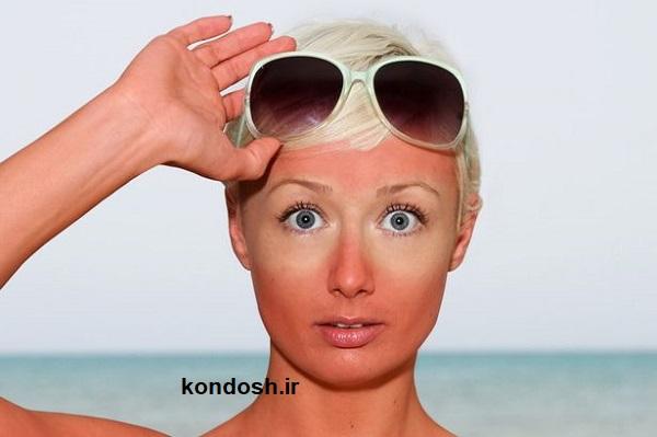 ۳ راه درمان آفتاب سوختگی
