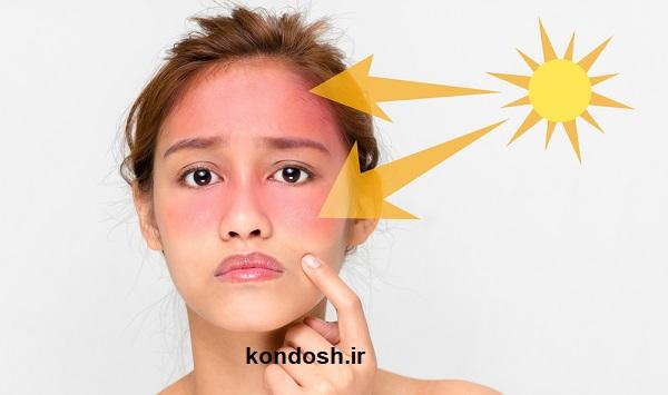 آفتاب سوختگی صورت