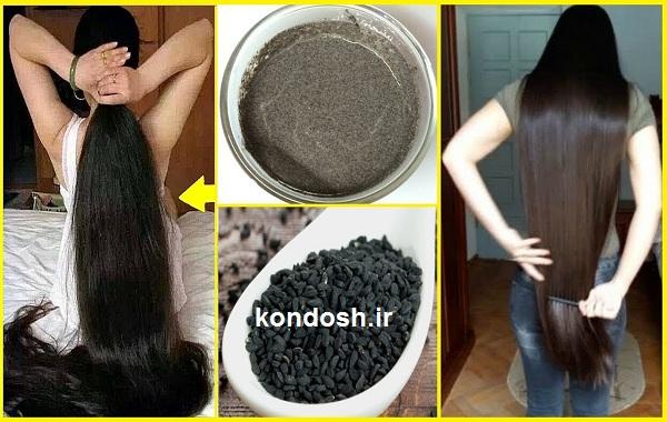 سیاه دانه و سفیدی مو