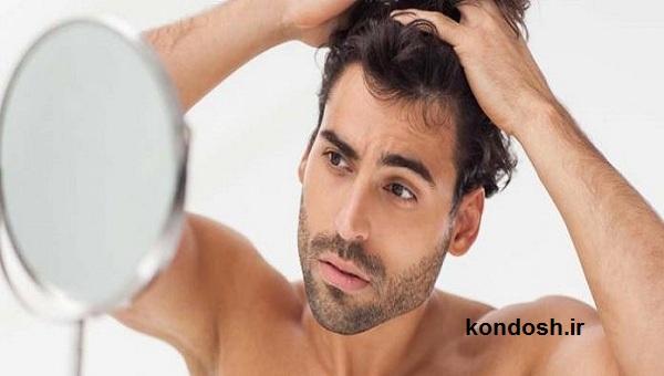 درمان خانگی برای کسانی که ریزش موی ارثی دارند