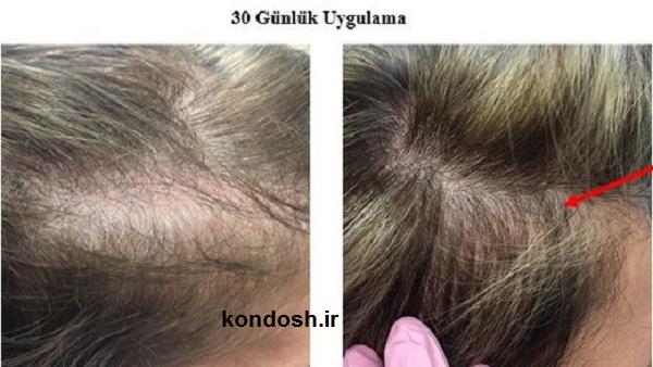 ریزش مو در زن ها و مرد ها