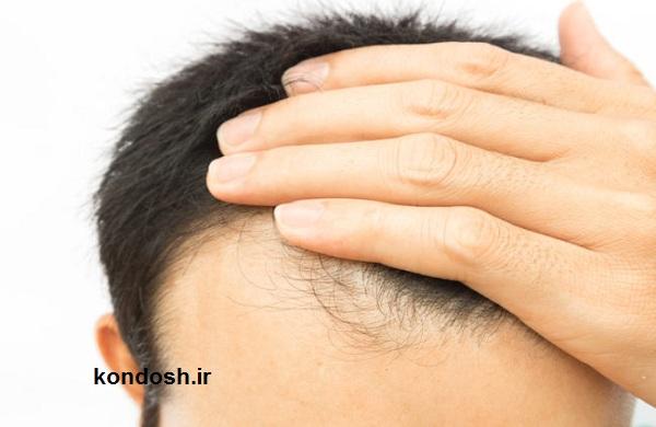 برطرف کردن ریزش مو در خانه