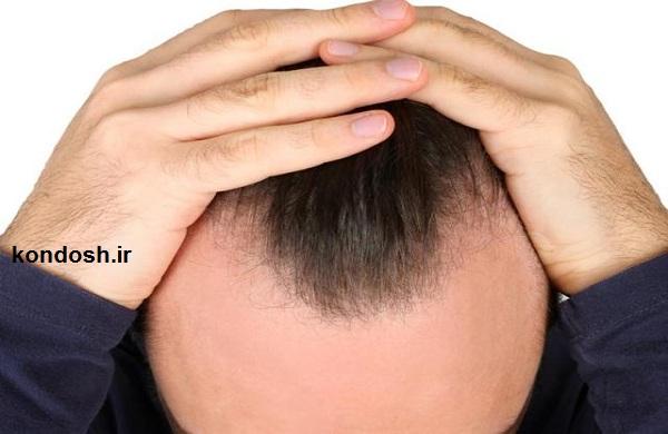 راهکار طب سوزنی برای ریزش مو