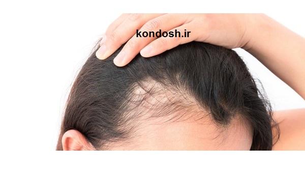 بررسی عوامل ریزش مو در طب