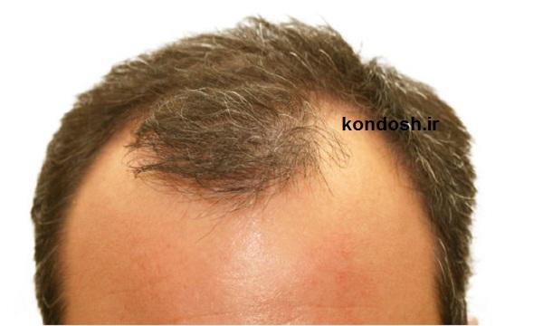 معرفی روش های خانگی برای درمان ریزش مو