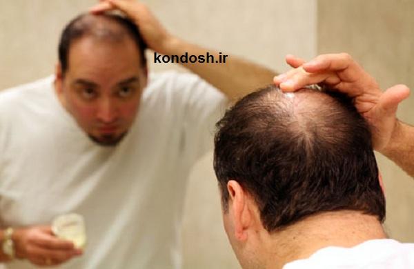 ترمیم مو و جلوگیری از ریزش مو با روش های گیاهی