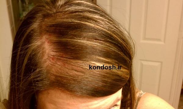 نحوه استفاده از گیاهان دارویی برای درمان ریزش مو