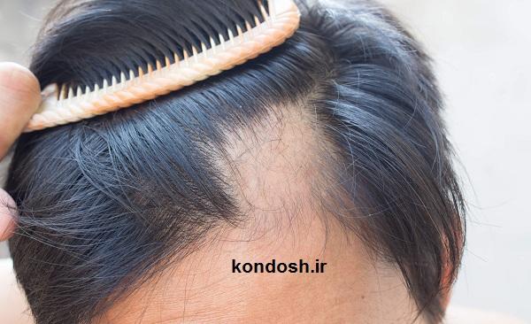 بهترین ترکیبات برای ریزش مو