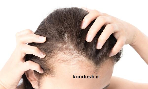 نسخه ای شگفت انگیز برای جلوگیری از ریزش و سفیدی مو
