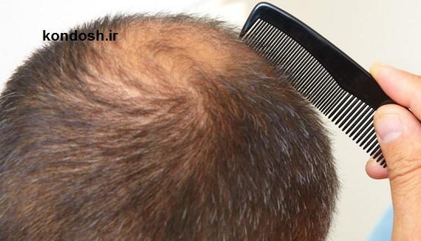 گیاهانی که برای درمان ریزش مو می توان استفاده کرد
