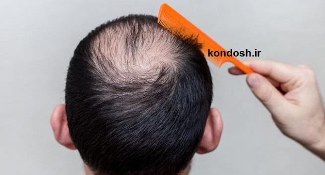 استفاده از راهکارهای گیاهی برای درمان ریزش مو